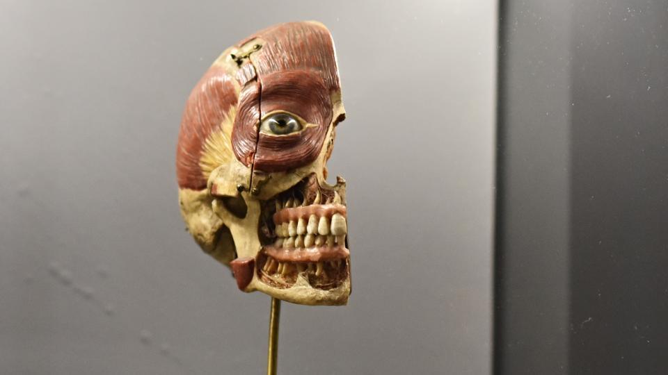 Anatomický model hlavy pro výuku mediků z druhé poloviny 19. století. Základem modelu je polovina skutečné lidské lebky, ve které jsou ponechány vypreparované nervy.