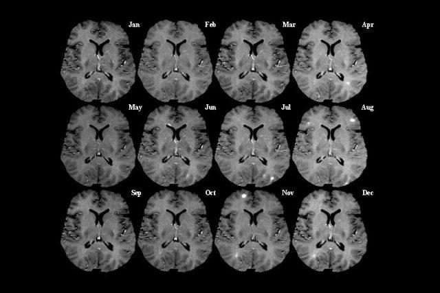 Snímky řezu mozku z magnetické rezonance v měsíčních intervalech. Světlé skvrny indikují aktivní poškození  (léze) | foto:  public domain,   Brookhaven National Laboratory