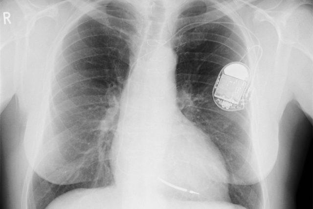 Rentgenový snímek hrudníku s implantovaným kardiostimulátorem