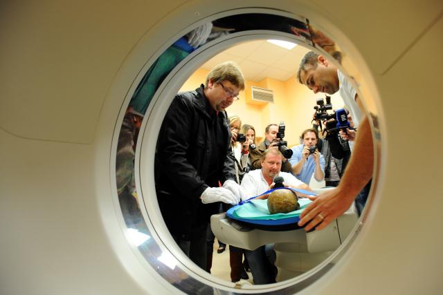 Táborská nemocnice vytvořila pomocí počítačové tomografie 3D snímek údajné lebky Jana Žižky z Trocnova