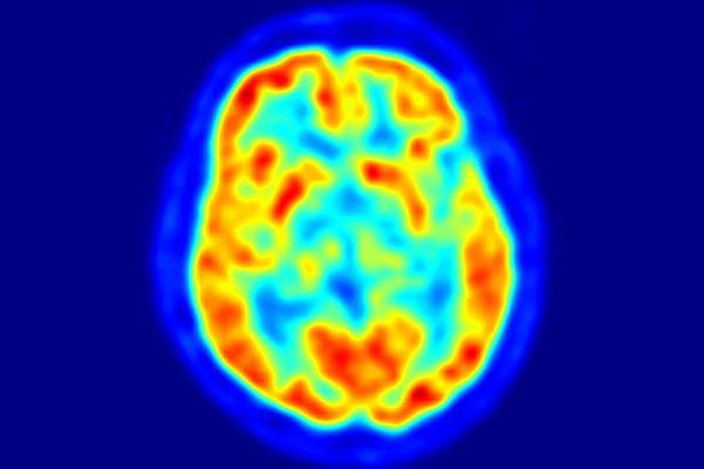 mozek   foto: licence Public Domain  (eng),  Jens Maus