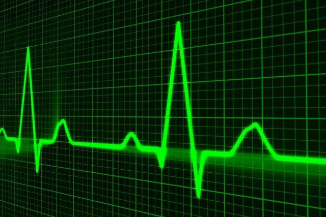 EKG, lidský puls, srdce, nemoc, zdavotnictví