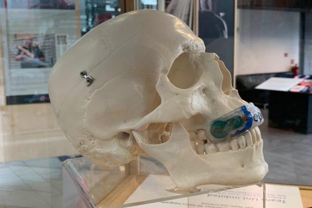 Chytrý gumový chránič zubů, který by mohl tvrdý sport učinit mnohem bezpečnějším