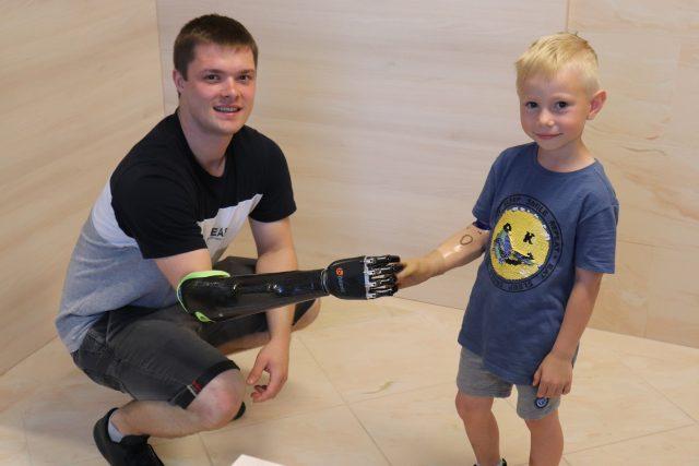 Karlík Kolesa a Jakub Zachoval. Zatímco pro Karlíka bude sžívání s bionickou rukou díky věku jednodušší, Jakub se musí všechno složitě učit
