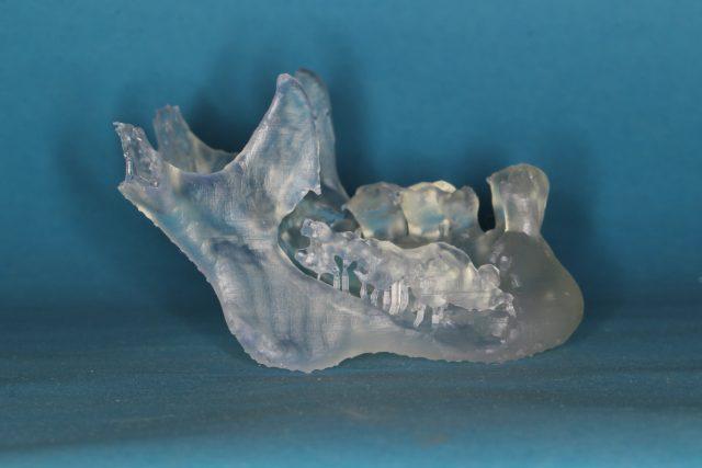 Model čelisti vyrobený 3D tiskárnou. Jedná se o pacienta s těžkým zánětlivým postižením čelisti